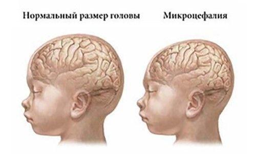 микроцефалия